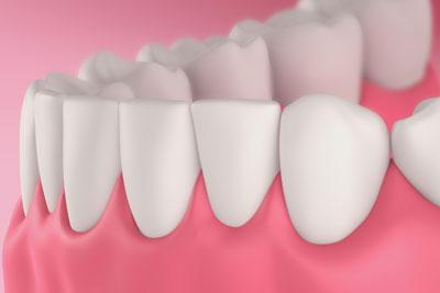 non-surgical periodontics